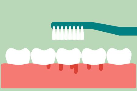 Dental cartoon vector, brushing teeth with bleeding on gum and tooth concept gingivitis or scurvy, flat style Ilustração