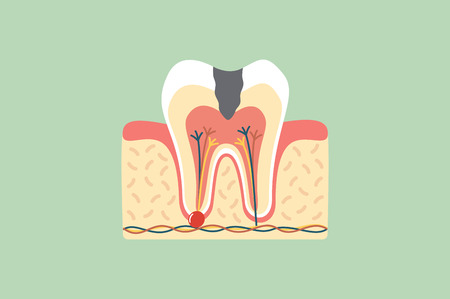 Dental cartoon vector flat style for design, decay tooth anatomy structure including the bone and gum Illustration