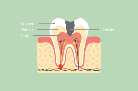 dental cartoon vector flat style for design, decay tooth anatomy structure including the bone and gum with detail word