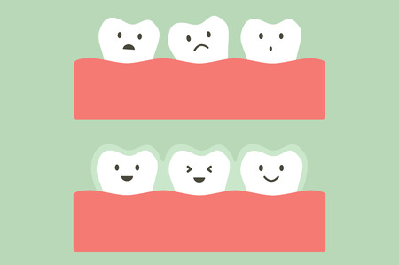 tooth cartoon vector flat style for design - before and after teeth wear silicone trainer or invisible braces, dental health concept