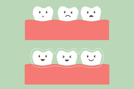 Tooth cartoon vector flat style for design - before and after teeth wear silicone trainer or invisible braces, dental care concept.