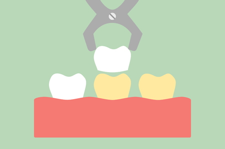 Teeth cartoon vector flat style for design, dental veneers - tooth whitening Ilustracja