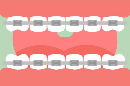 Tooth cartoon vector flat style for design - orthodontics teeth or dental braces, open mouth with healthy teeth and tongue