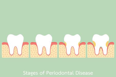 tooth cartoon vector flat style for design - step of periodontal disease  periodontitis  gingivitis  gum disease, dental problem