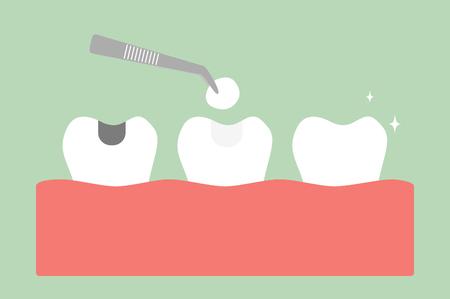Amalgama de diente llenando con herramientas dentales en la ilustración de estilo plano de dibujos animados.