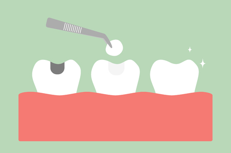 Tooth amalgam filling with dental tools in cartoon flat style illustration.
