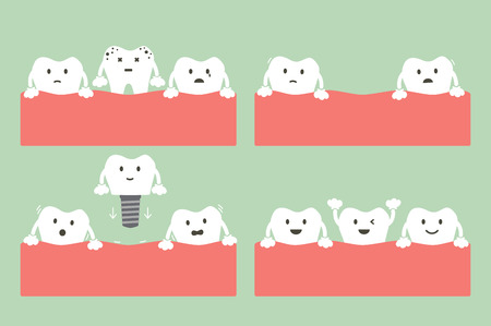 Step of caries to dental implant with crown, dental care concept in cartoon flat style illustration.