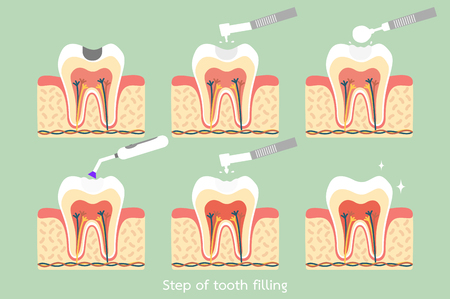 Teeth cartoon vector flat style for design. Step of caries to tooth amalgam filling with dental tools. Anatomy structure including the bone and gum.
