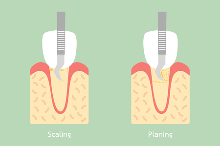 Tooth scaling - dental plaque removal, anatomy structure including the bone and gum - tooth cartoon vector flat style cute character for design. Illustration