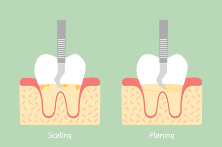 Dental plaque removal, anatomy structure including the bone and gum concept illustration.
