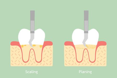 Tandplaqueverwijdering, anatomiestructuur met inbegrip van de been en gomconceptenillustratie. Stock Illustratie
