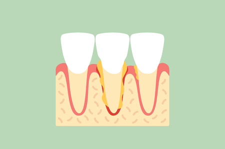 Periodontal disease or gingivitis of incisor tooth - dental. Cartoon vector flat style cute character for design.