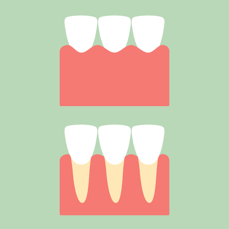 Healthy incisor tooth on gum for dental care - teeth. Cartoon vector flat style cute character for design.