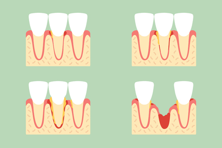 Steps of periodontal disease cartoon vector flat style cute character design