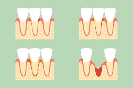 Steps of periodontal disease cartoon vector flat style cute character design
