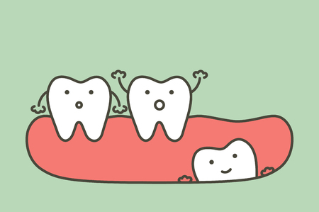 Wisdom tooth angular or mesial impaction affect to other teeth - dental cartoon vector flat style cute character for design