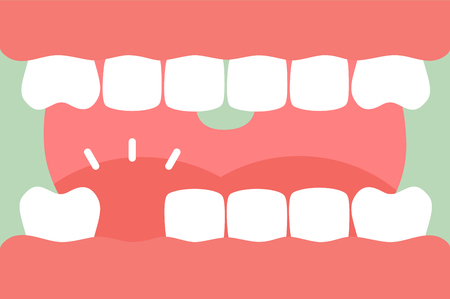 An open mouth with strong teeth and tongue and missing tooth - dental cartoon vector flat style cute character for design Vectores