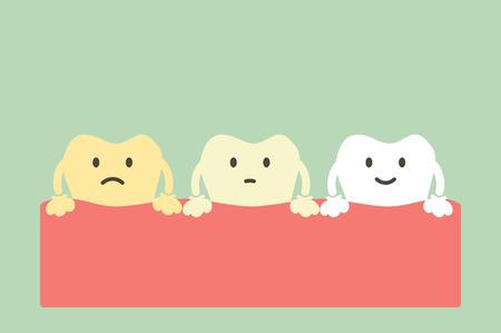 Dent jaune à blanche, concept de blanchiment des dents - vecteur de dessin animé dentaire style plat personnage mignon pour la conception.