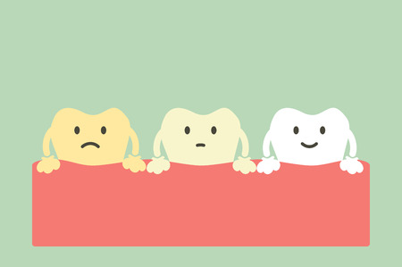 Yellow to white tooth, teeth whitening concept - dental cartoon vector flat style cute character for design. Illustration