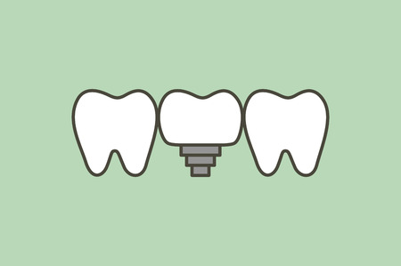 tooth implant, teeth change new root - dental cartoon  flat style cute character for design