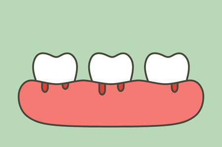 Periodontitis or gum disease with bleeding ( blood flow come from gum and tooth ), dental problem - teeth cartoon vector flat style cute character for design Illustration