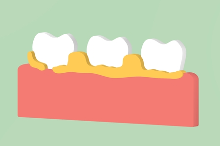 tooth periodontal disease with dental plaque or tartar - teeth cartoon 3d render flat style cute character for design Stock Photo