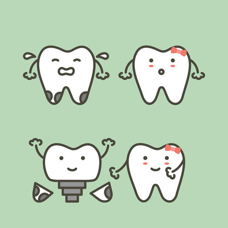 Tooth implant before and after, teeth change new root to friend. Dental cartoon vector flat style cute character for design. Illustration