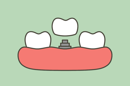 Tooth implant, installation process and change new root for teeth. Dental cartoon vector flat style cute character for design.