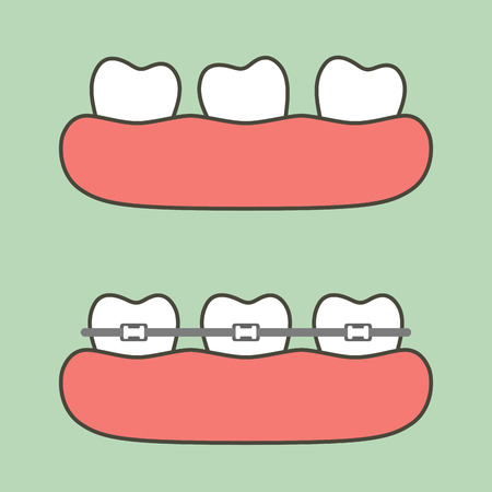 step of orthodontics treatment, before and after - dental cartoon vector flat style cute character for design Illustration
