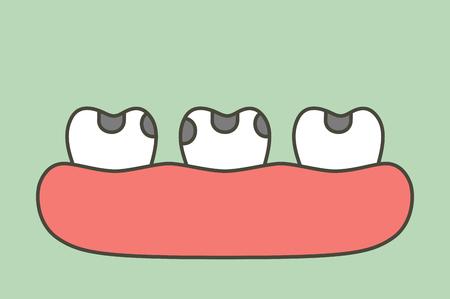 decay tooth or dental caries - teeth cartoon vector flat style cute character for design Vektorgrafik