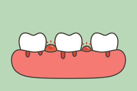 periodontitis o enfermedad de las encías con sangrado (el flujo sanguíneo proviene de las encías y los dientes), problema dental - personaje lindo de estilo plano de vector de dibujos animados de dientes para el diseño
