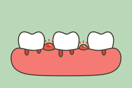 parodontite o malattie gengivali con sanguinamento (il flusso sanguigno proviene da gengive e denti), problema dentale - carattere carino stile piatto di vettore del fumetto dei denti per il design