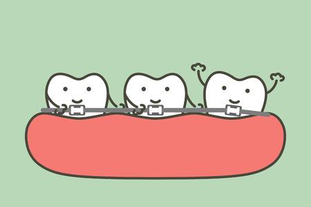 denti di ortodonzia o apparecchi ortodontici - carattere carino stile piatto di vettore del fumetto del dente per il disegno