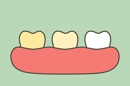 yellow to white tooth, teeth whitening before and after - dental cartoon vector flat style cute character for design