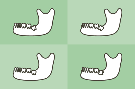 set of type of wisdom tooth in mandible or lower jaw - dental cartoon vector flat style cute character for design Ilustrace