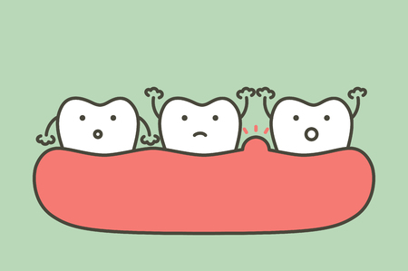 periodontitis or gum disease with swell ( swollen on gum and tooth because inflammation ), dental problem - teeth cartoon vector flat style cute character for design