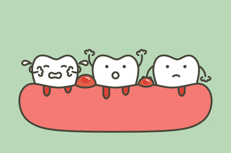 periodontitis or gum disease with bleeding ( blood flow come from gum and tooth ), dental problem - teeth cartoon  flat style cute character for design