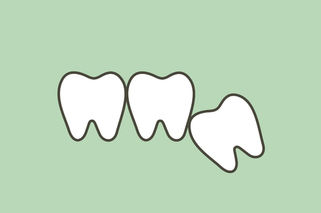 wisdom tooth ( angular or mesial impaction ) affect to other teeth - dental cartoon vector flat style cute character for design