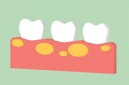 unhealthy teeth because gingivitis with abscess in gum - dental cartoon 3d render flat style cute character for design