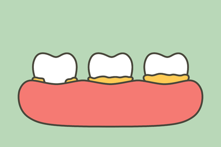 step of plaque or tartar , cause of tooth periodontal disease - dental cartoon vector flat style cute character for design
