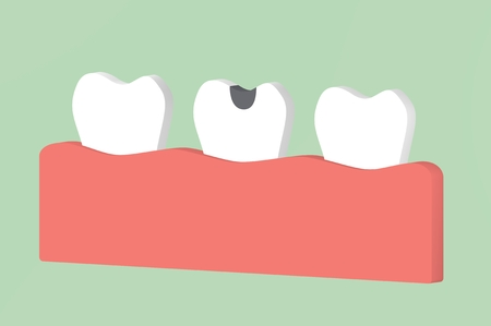 decay tooth or dental caries - teeth cartoon 3d render flat style cute character for design