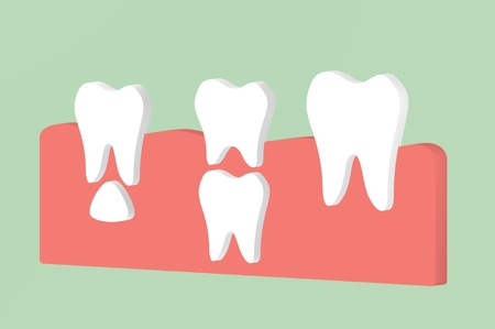 permanent tooth located below primary tooth - dental cartoon 3d render flat style cute character for design