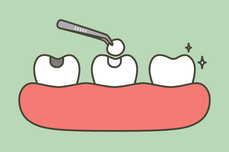 step of tooth amalgam filling by dental tools to protection decay tooth, before and after - teeth cartoon vector flat style cute character for design