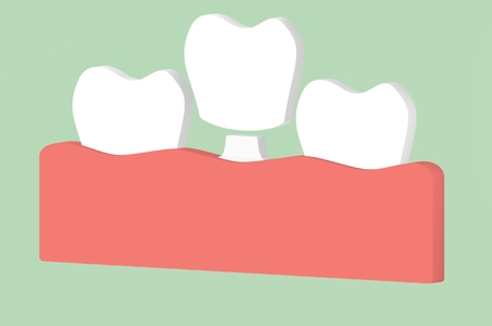 dental implant, installation process and change of teeth - tooth cartoon 3d render flat style cute character for design