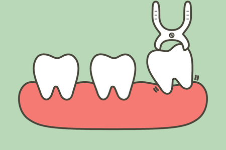 tooth extraction by dental tools to remove wisdom tooth - teeth cartoon vector flat style cute character for design 矢量图像