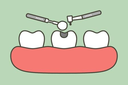 step of tooth amalgam filling by dental tools to protection decay tooth - teeth cartoon vector flat style cute character for design Illustration
