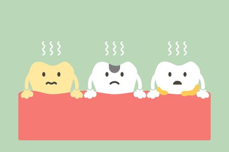 set of tooth is halitosis or bad breath - dental cartoon vector flat style cute character for design Illustration