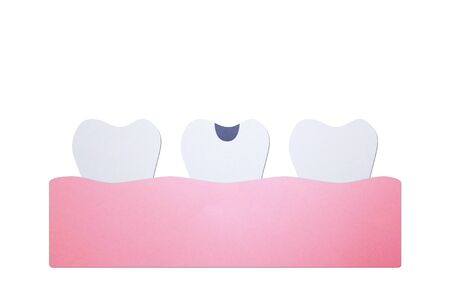 decay tooth or dental caries - teeth cartoon paper cut style cute character for design