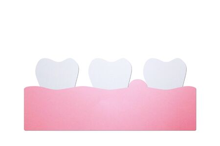 periodontitis or gum disease with swell ( swollen on gum and tooth because inflammation ), dental problem - teeth cartoon paper cut style cute character for design