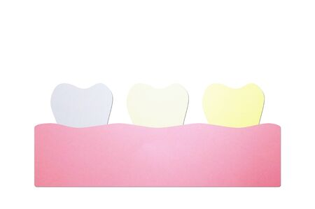 bad hygiene or unhealthy teeth concept, white to yellow tooth - dental cartoon paper cut style cute character for design